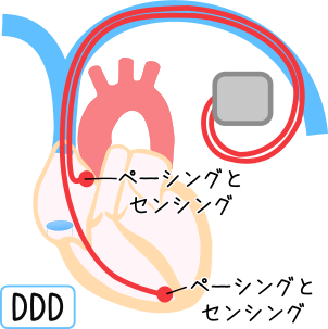 pacemaker2.png